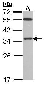 VDAC2 Antibody (PA5-28106) in Western Blot