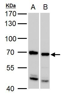 SSX2IP Antibody (PA5-28108) in Western Blot