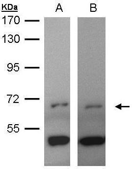 ITK Antibody (PA5-28119) in Western Blot