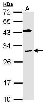 CYBRD1 Antibody (PA5-28125)