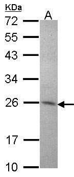 Amisyn Antibody (PA5-28126) in Western Blot