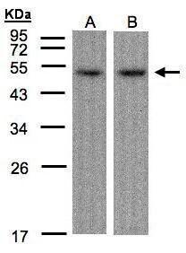 ATF7 Antibody (PA5-28130) in Western Blot