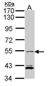 IRF5 Antibody (PA5-28136) in Western Blot