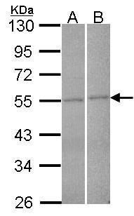 FBXL2 Antibody (PA5-28140) in Western Blot