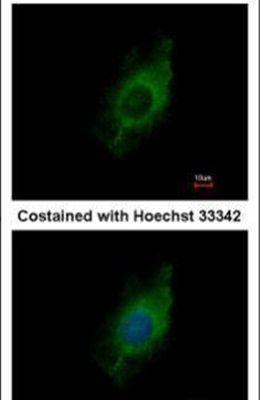 KIF5A Antibody (PA5-28143) in Immunofluorescence