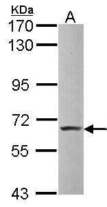 Pokemon Antibody (PA5-28144) in Western Blot