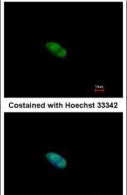 ZNF148 Antibody (PA5-28147)