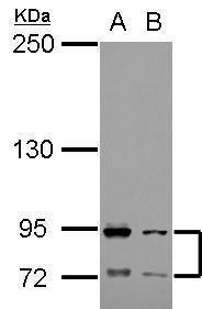 FCAR Antibody (PA5-28151) in Western Blot
