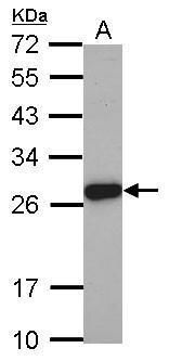 ELA3A Antibody (PA5-28155) in Western Blot