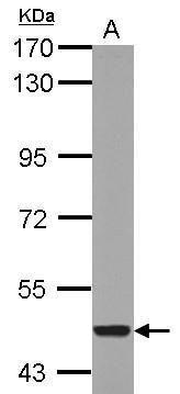 CYP26A1 Antibody (PA5-28165) in Western Blot