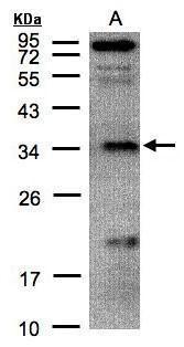 FN3KRP Antibody (PA5-28166)
