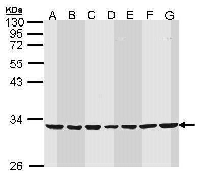 MTHFD2 Antibody (PA5-28169) in Western Blot