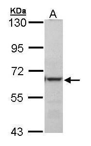 METTL3 Antibody (PA5-28178) in Western Blot