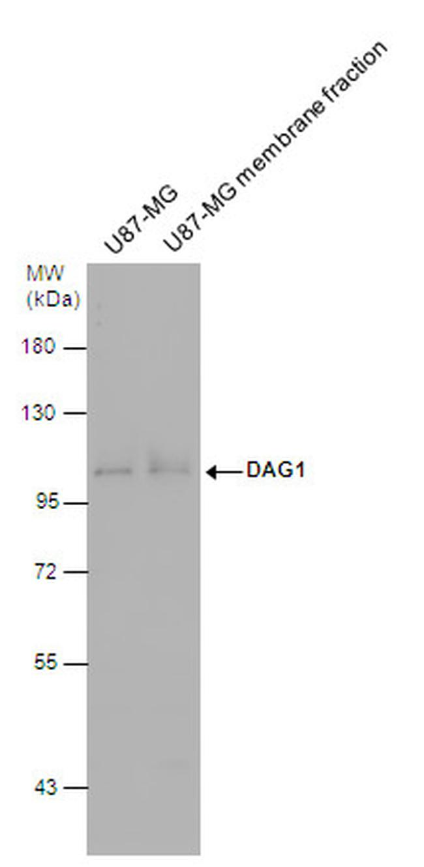alpha Dystroglycan Antibody (PA5-28179) in Western Blot