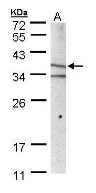 MICA Antibody (PA5-28181) in Western Blot