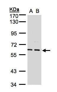 GABRA5 Antibody (PA5-28186) in Western Blot
