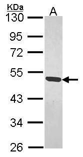MAGEB1 Antibody (PA5-28192) in Western Blot