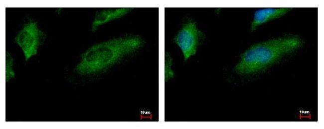 CALCOCO1 Antibody (PA5-28193) in Immunofluorescence