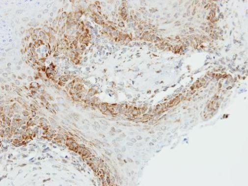 OGDH Antibody (PA5-28195) in Immunohistochemistry (Paraffin)
