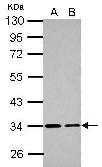 ETFA Antibody (PA5-28201) in Western Blot