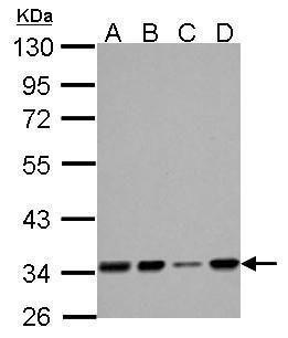 HADH Antibody (PA5-28203) in Western Blot