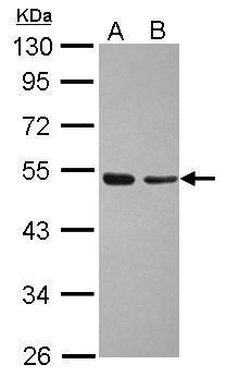 TAF7 Antibody (PA5-28205) in Western Blot