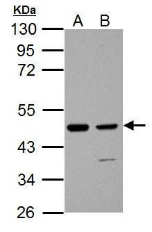 IDH1 Antibody (PA5-28206) in Western Blot