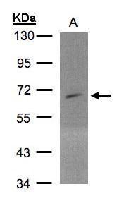 PIP5K1A Antibody (PA5-28215)