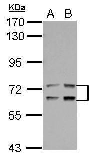 LTA4H Antibody (PA5-28216) in Western Blot