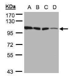 HK1 Antibody (PA5-28217) in Western Blot