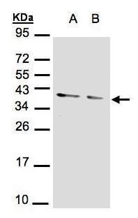 PP1 alpha Antibody (PA5-28218) in Western Blot