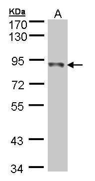 NDUFS1 Antibody (PA5-28220) in Western Blot