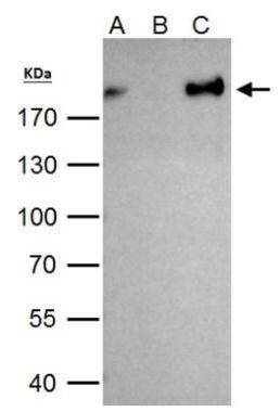 ZEB1 Antibody (PA5-28221) in Immunoprecipitation