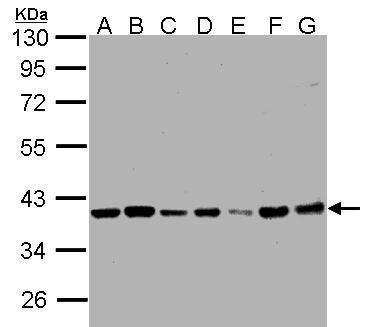 PP1 beta Antibody (PA5-28225) in Western Blot