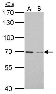 GAS6 Antibody (PA5-28227) in Western Blot