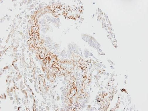 SLC5A1 Antibody (PA5-28240) in Immunohistochemistry (Paraffin)
