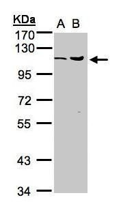 USP5 Antibody (PA5-28243) in Western Blot