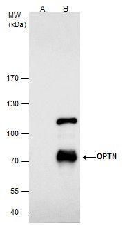 Optineurin Antibody (PA5-28249) in Immunoprecipitation