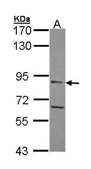 APEH Antibody (PA5-28251)