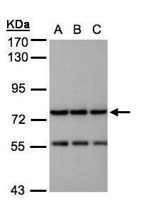 NAGLU Antibody (PA5-28261) in Western Blot