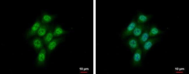 CMPK1 Antibody (PA5-28268) in Immunofluorescence