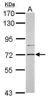 PIP5K1C Antibody (PA5-28274) in Western Blot