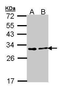 FKBP25 Antibody (PA5-28275)