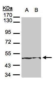 Cytokeratin 18 Antibody (PA5-28279) in Western Blot