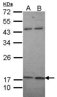 KCNMB1 Antibody (PA5-28284)