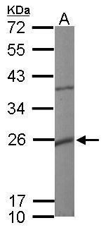 KCNMB1 Antibody (PA5-28284) in Western Blot