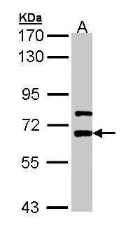 LGI1 Antibody (PA5-28291)