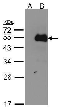 NFIB Antibody (PA5-28299) in Western Blot