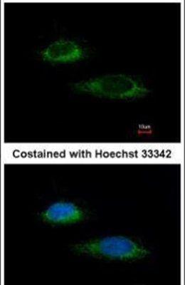 Glutamate Dehydrogenase Antibody (PA5-28301)