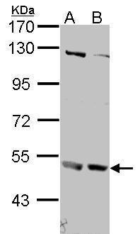 IFNAR2 Antibody (PA5-28303) in Western Blot